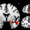 Brain scans depression